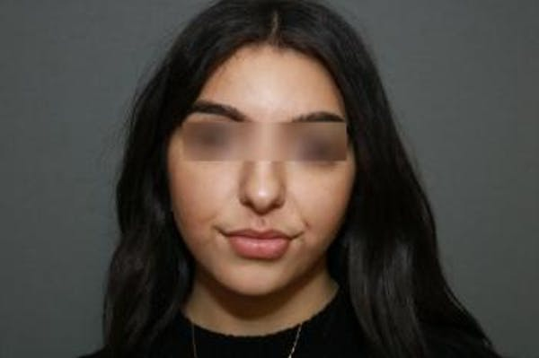 Ethnic Rhinoplasty Gallery - Patient 5070631 - Image 1