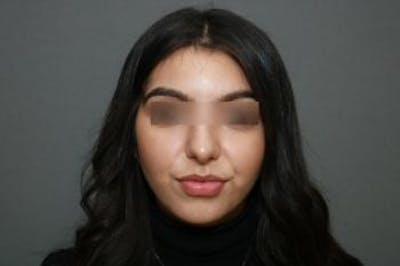 Ethnic Rhinoplasty Gallery - Patient 5070631 - Image 2