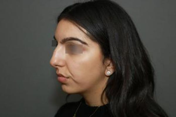 Ethnic Rhinoplasty Gallery - Patient 5070631 - Image 3