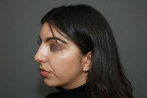 Ethnic Rhinoplasty Gallery - Patient 5070631 - Image 4