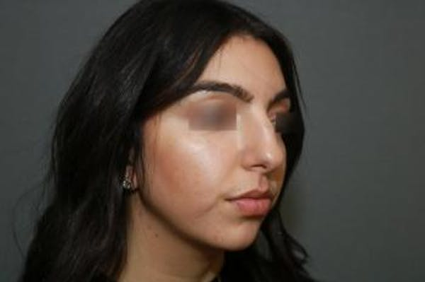 Ethnic Rhinoplasty Gallery - Patient 5070631 - Image 5