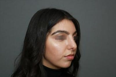 Ethnic Rhinoplasty Gallery - Patient 5070631 - Image 6