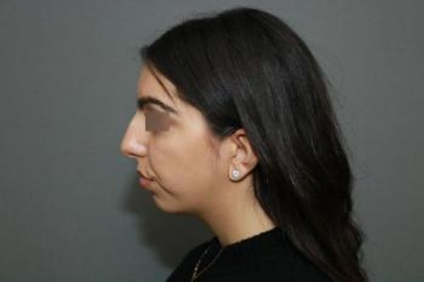 Ethnic Rhinoplasty Gallery - Patient 5070631 - Image 7