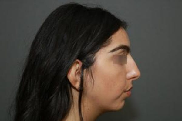 Ethnic Rhinoplasty Gallery - Patient 5070631 - Image 9
