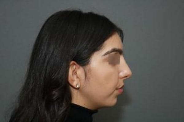 Ethnic Rhinoplasty Gallery - Patient 5070631 - Image 10