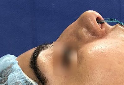 Ethnic Rhinoplasty Gallery - Patient 5070633 - Image 3