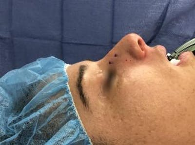 Post-Trauma Rhinoplasty Gallery - Patient 5070640 - Image 1