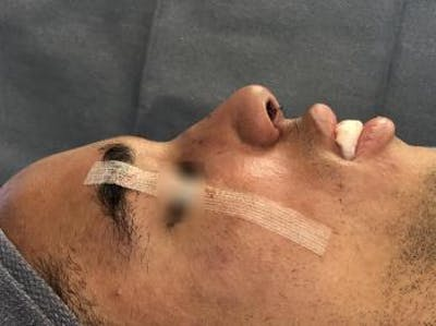 Post-Trauma Rhinoplasty Gallery - Patient 5070649 - Image 2