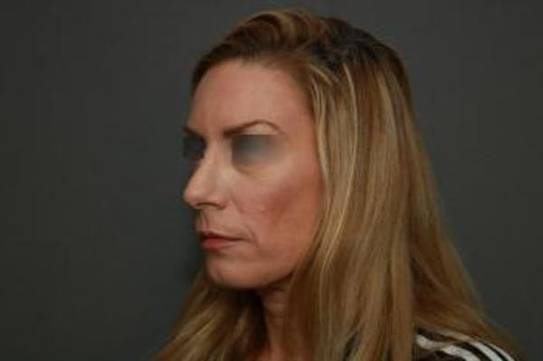 Revision Rhinoplasty Gallery - Patient 5070669 - Image 3
