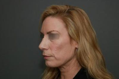 Revision Rhinoplasty Gallery - Patient 5070669 - Image 4