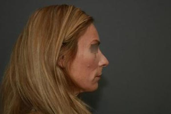 Revision Rhinoplasty Gallery - Patient 5070669 - Image 5