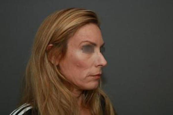 Revision Rhinoplasty Gallery - Patient 5070669 - Image 7