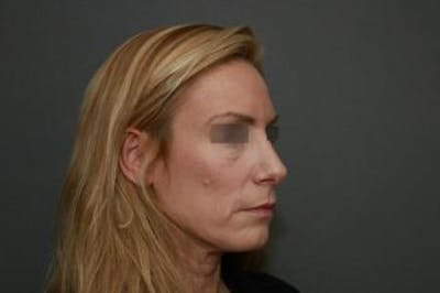 Revision Rhinoplasty Gallery - Patient 5070669 - Image 8