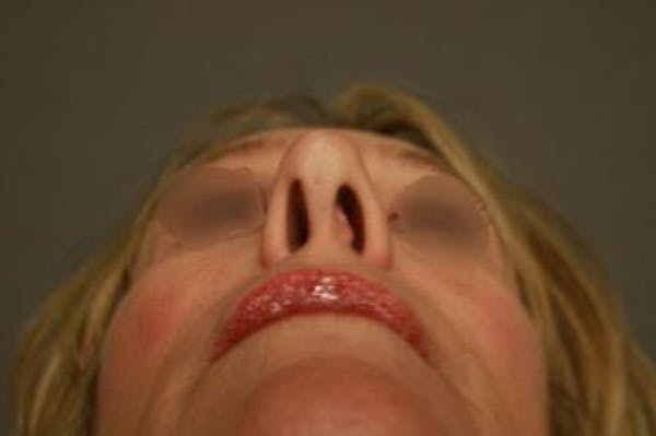 Revision Rhinoplasty Gallery - Patient 5070679 - Image 1