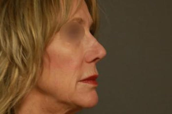 Revision Rhinoplasty Gallery - Patient 5070679 - Image 3