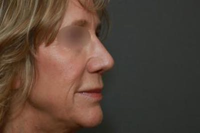 Revision Rhinoplasty Gallery - Patient 5070679 - Image 4