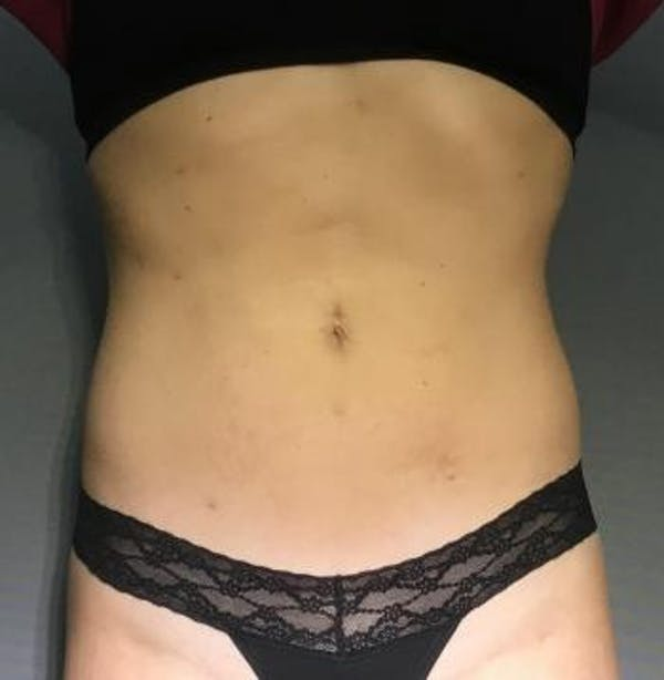 Before and After image of Liposuction in Ladera Ranch