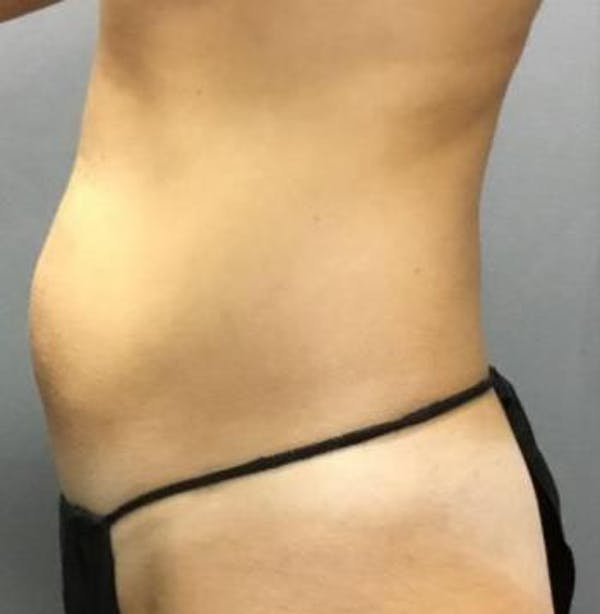 Microcannula Liposuction Gallery - Patient 5070685 - Image 3
