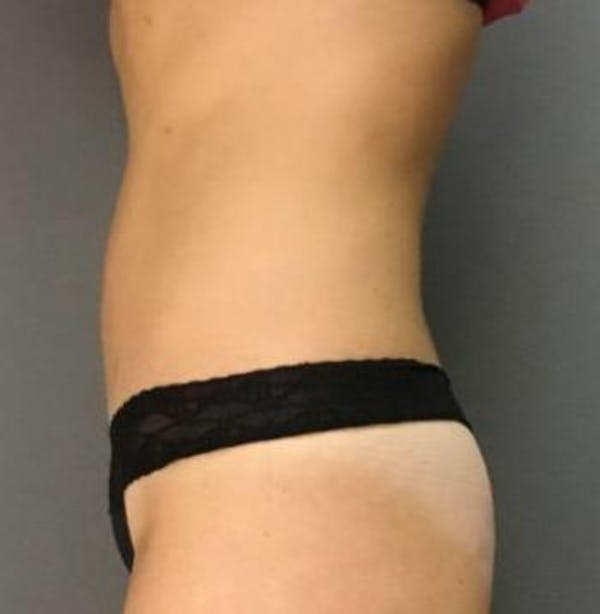 Microcannula Liposuction Gallery - Patient 5070685 - Image 4