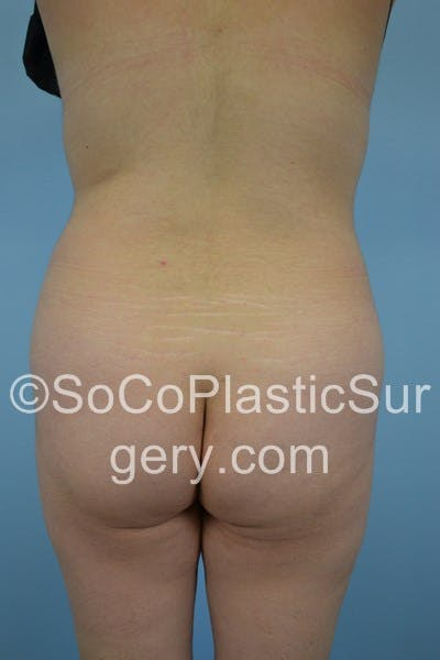 Brazilian Butt Lift Gallery - Patient 5070738 - Image 1