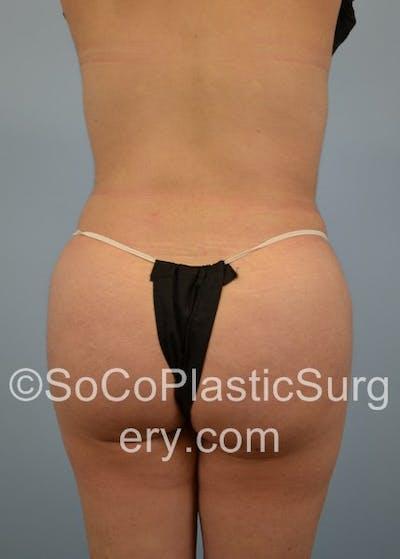 Brazilian Butt Lift Gallery - Patient 5070738 - Image 2