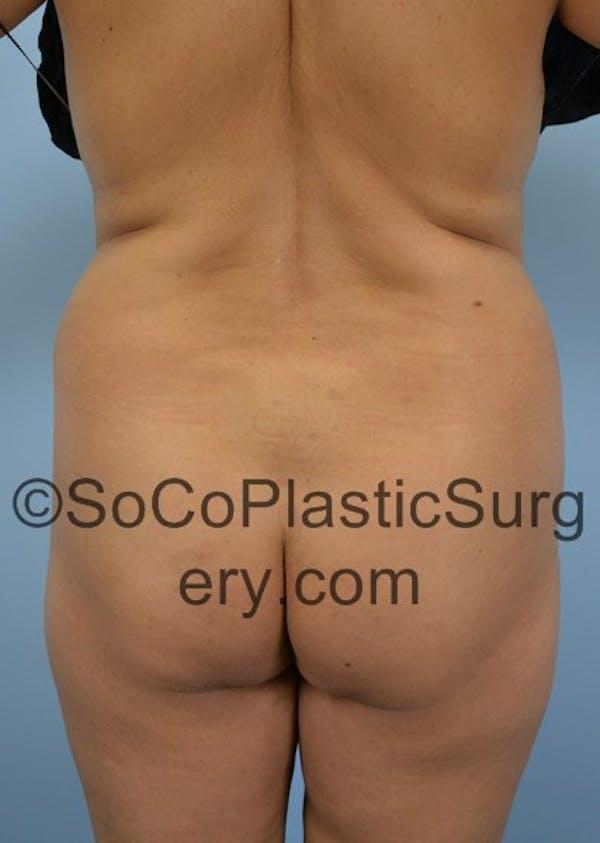 Brazilian Butt Lift Gallery - Patient 5070757 - Image 1