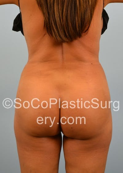 Brazilian Butt Lift Gallery - Patient 5070757 - Image 2