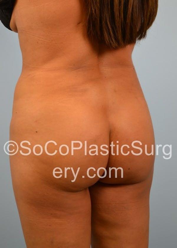 Brazilian Butt Lift Gallery - Patient 5070757 - Image 6