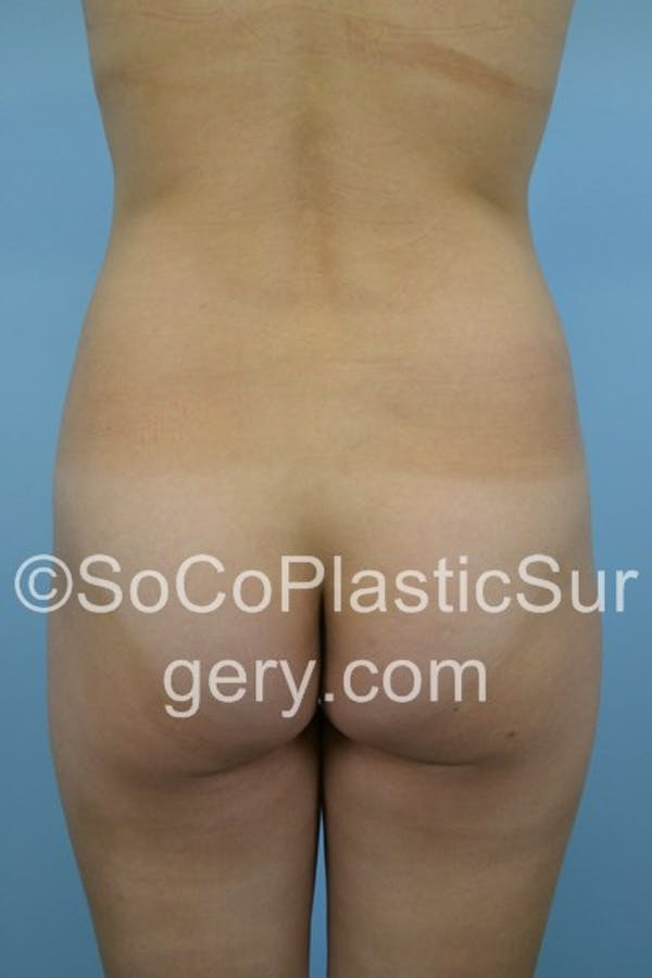 Before and After image of Brazilian Butt Lift in Ladera Ranch