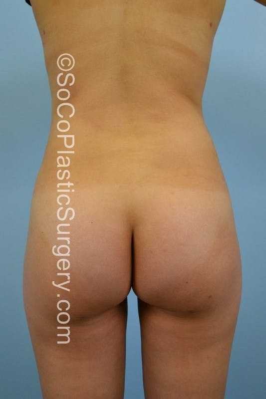 Brazilian Butt Lift Gallery - Patient 5070761 - Image 2
