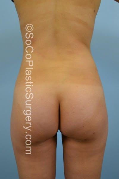 Brazilian Butt Lift Gallery - Patient 5070761 - Image 2