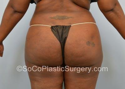 Brazilian Butt Lift Gallery - Patient 5070817 - Image 2