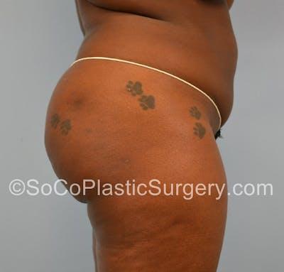 Brazilian Butt Lift Gallery - Patient 5070817 - Image 4