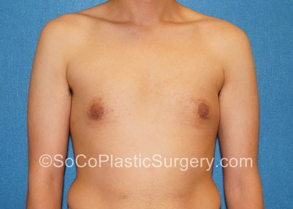 Before and After image of Gynecomastia in Irvine