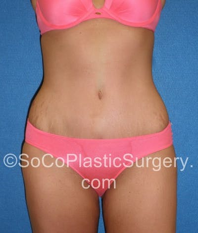 Tummy Tuck Gallery - Patient 5088730 - Image 2