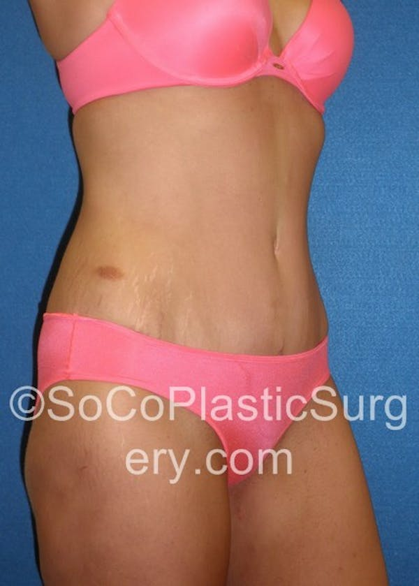 Tummy Tuck Gallery - Patient 5088730 - Image 4