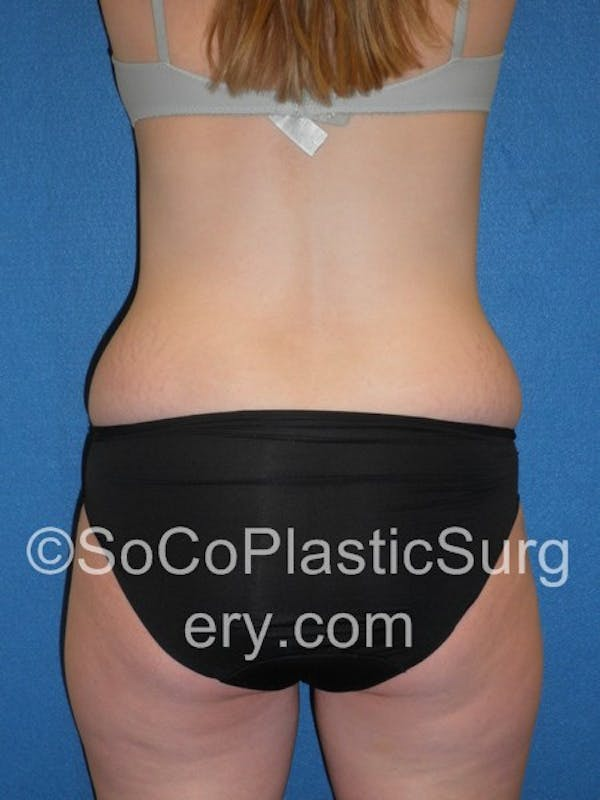 Tummy Tuck Gallery - Patient 5088730 - Image 7