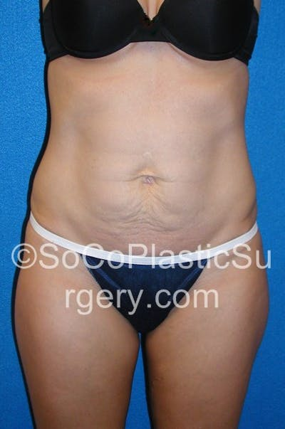 Tummy Tuck Gallery - Patient 5088812 - Image 2