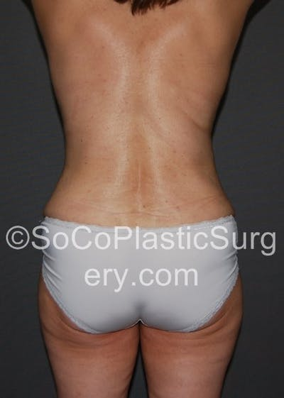 Tummy Tuck Gallery - Patient 5088907 - Image 2