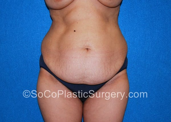 Tummy Tuck Gallery - Patient 5088907 - Image 3