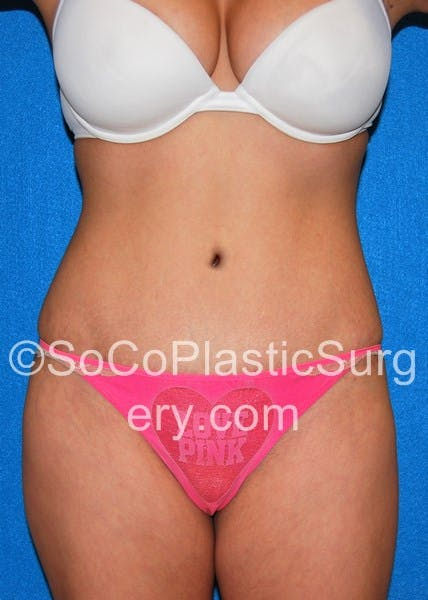 Tummy Tuck Gallery - Patient 5088994 - Image 2