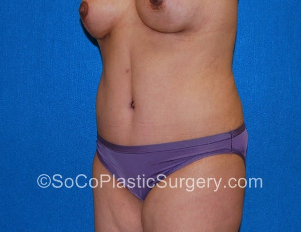 Tummy Tuck Gallery - Patient 5089122 - Image 4