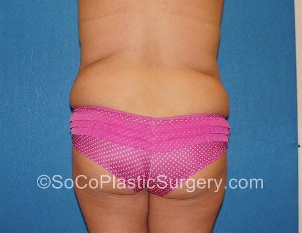 Tummy Tuck Gallery - Patient 5089122 - Image 7