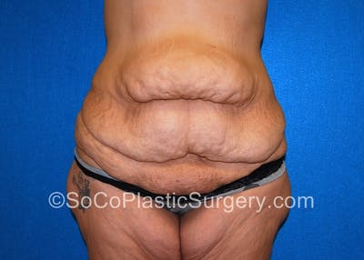 Tummy Tuck Gallery - Patient 5089235 - Image 1