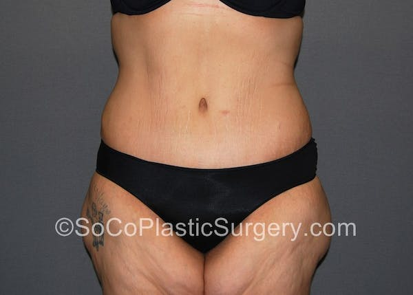 Tummy Tuck Gallery - Patient 5089235 - Image 2
