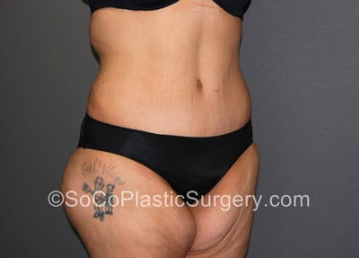 Tummy Tuck Gallery - Patient 5089235 - Image 4