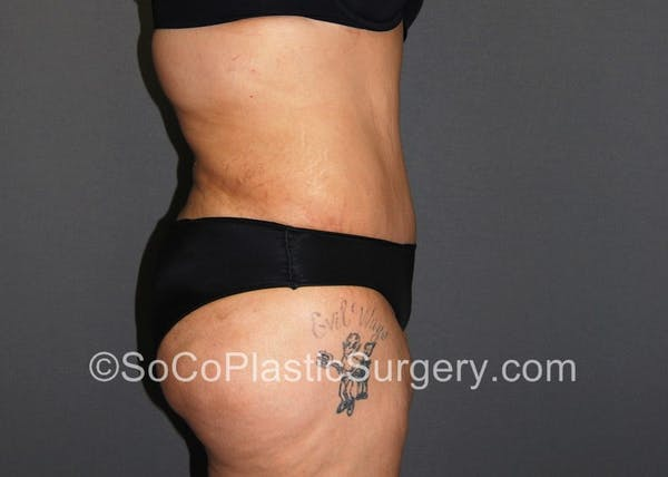 Tummy Tuck Gallery - Patient 5089235 - Image 6