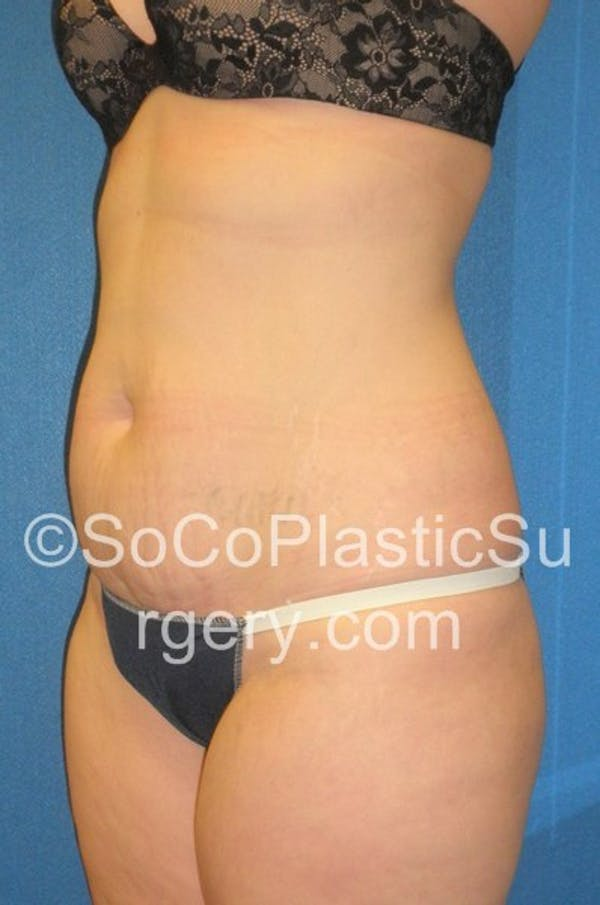 Tummy Tuck Gallery - Patient 5089318 - Image 3