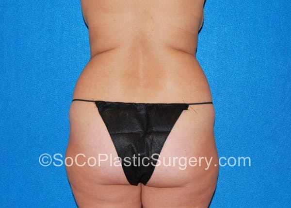 Tummy Tuck Gallery - Patient 5089485 - Image 7