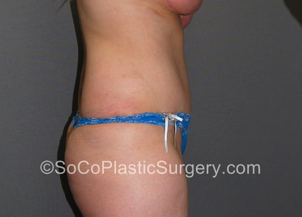 Tummy Tuck Gallery - Patient 5089578 - Image 6